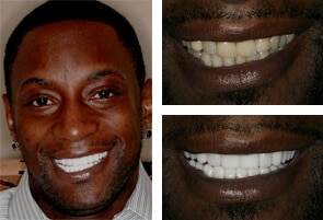 Full Mouth Smile Makeover North Carolina