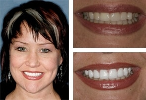 Invisalign Braces Alternative Charlotte