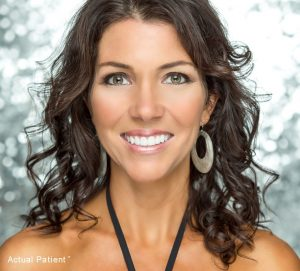 Invisalign in Charlotte NC 300x271 - How Dr. Broome Transforms Smiles with Invisalign