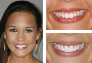 Veneer Teeth Treatment Charlotte