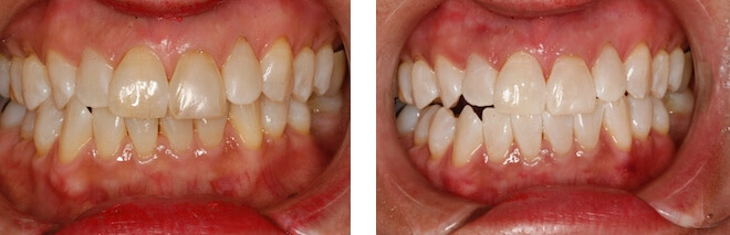 before after photo of teeth whitening