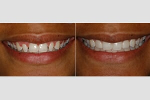 Dental Veneers in Charlotte
