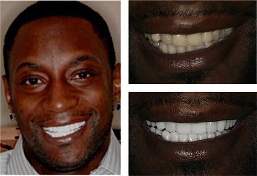 full mouth landing - Smile Gallery