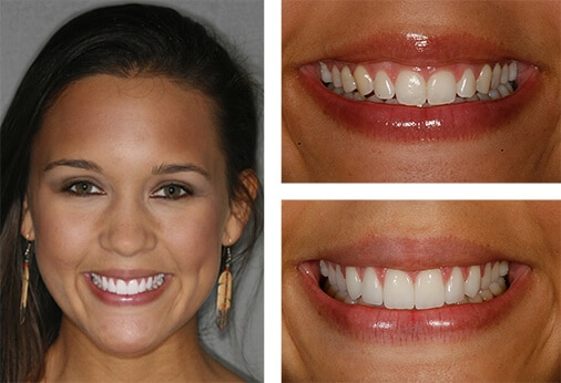 veneers landing - Dental Services