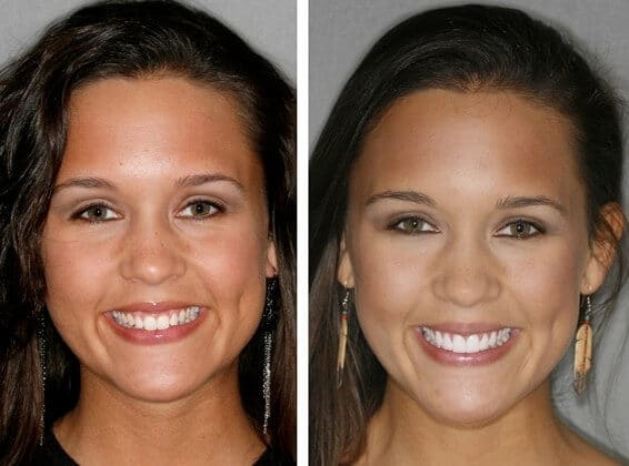 Venners Case 2 Before After