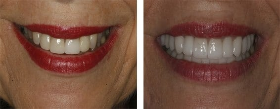 venners case 4 beforeafter - Veneers Case 4