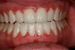 teeth whitening for yellow teeth charlotte