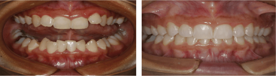 Invisalign Straight Teeth Charlotte - How Dr. Broome Transforms Smiles with Invisalign