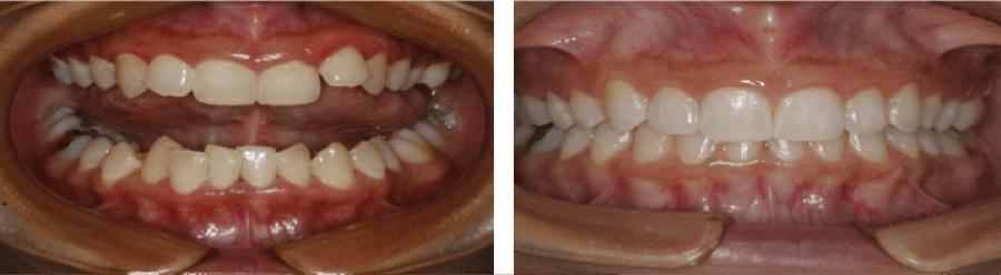 Invisalign Straight Teeth Charlotte