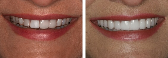 Mouth Rehab Before and After Charlotte