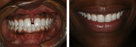 invisalign case 1 beforeafter - How Dr. Broome Transforms Smiles with Invisalign