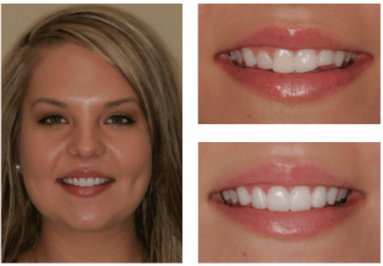 Images of a female patient with before and shots before and after chipped Tooth Veneer Repair