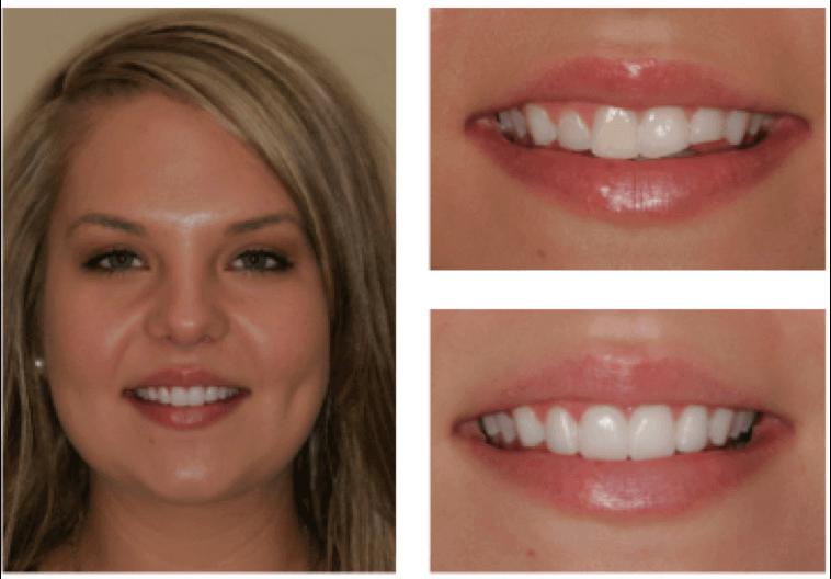 Charlotte Chipped Tooth Veneer Repair