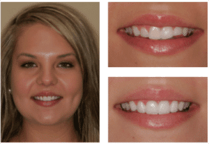 Before After Veneers in Charlotte