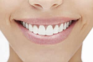 best dentist charlotte 300x200 - The Easiest Way to Brighten Your Smile