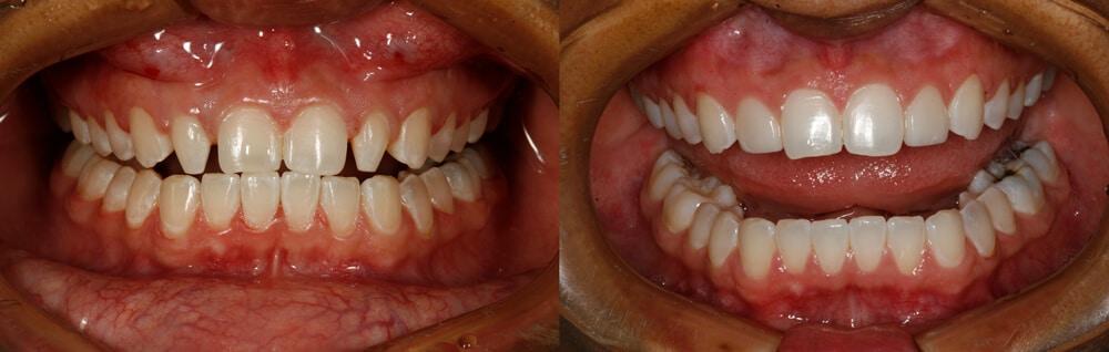 Broome North Carolina Small Teeth Makeover - Undersized Teeth Case Study: A No-Prep Smile Makeover