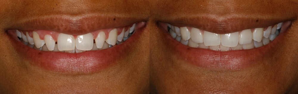 Image showing teeth before and after having Porcelain Veneers for small teeth, filling up the gaps in between the teeth, Charlotte, North Carolina