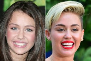 Image shows famous pop singer/songwriter with her smile transformation after having porcelain veneers