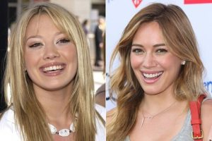 Image of Hillary Duff, a pop star with before smile with uneven teeth and chip and after smile photos using porcelain veneers