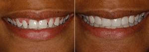 undersized-teeth-charlotte