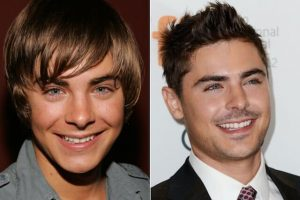 zac efron veneers 300x200 - Which Celebrities Have Veneers?