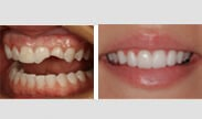 before after veneers north carolina - Dental Dangers in Your Diet