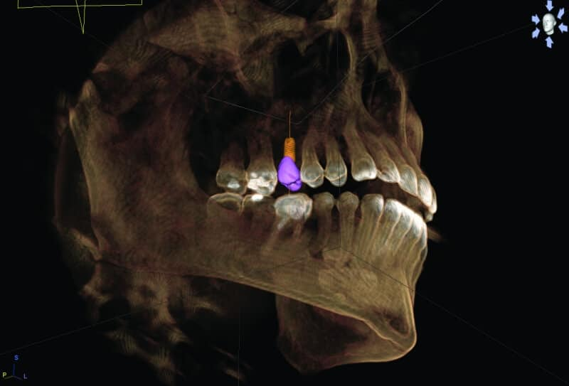 Digital Implant plan with restoration at charlotte center for cosmetic dentistry