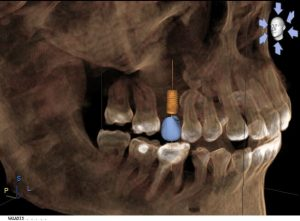 3D image of Virtual Implant planning
