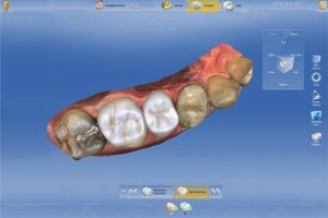 Cerec crown design software