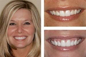 before after photo of a gummy smile procedure