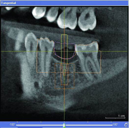 Digital Dentistry in Charlotte NC - Implant Placement