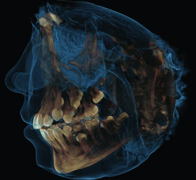 Galileos Hard and Soft Tissue 3D Image in Charlotte, NC