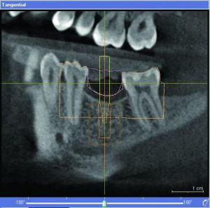 north carolina Sirona Implant planning