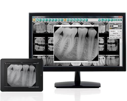 North Carolina Dental Scanner Technology