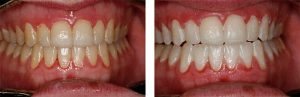 before after of teeth whitening procedure