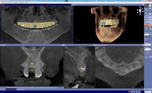 digital dentistry technology at charlotte center for cosmetic dentistry