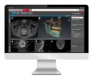 digital cosmetic dentistry examination in charlotte, nc